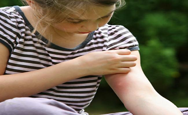 Τσίμπημα από έντομο: Τα 10 σημάδια που επιβάλλουν την επίσκεψη στα Επείγοντα