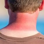 Έγκαυμα από τον ήλιο: Ποιες είναι οι πρώτες βοήθειες